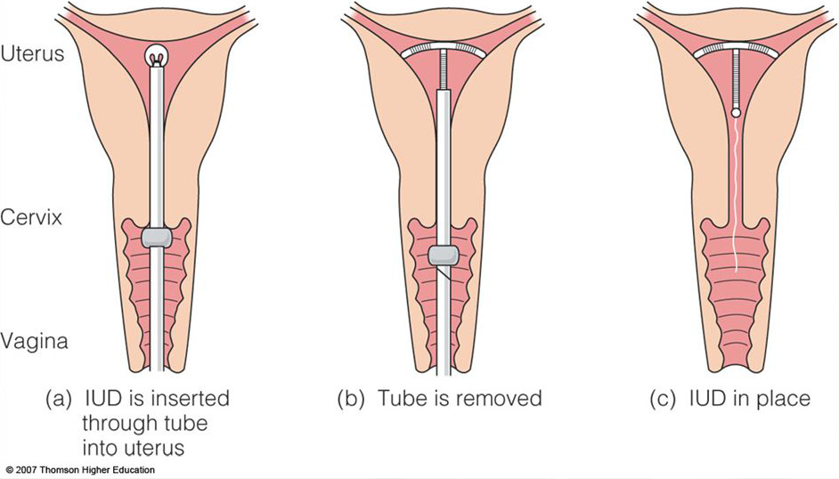 The image is 3 diagrams of a Vagina, Cervix, and Uterus. First image shows the inserter being slid inside the cervix. The second image shows the IUD being released, and the inserter being pulled back. The third image shows the IUD in the uterus with the strings hanging down past the cervix. The inserter is gone.